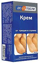 Parfüm, Parfüméria, kozmetikum Repedezés elleni sarokkrém - Do i Posle