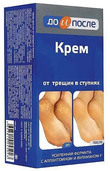 Repedezés elleni sarokkrém - Do i Posle
